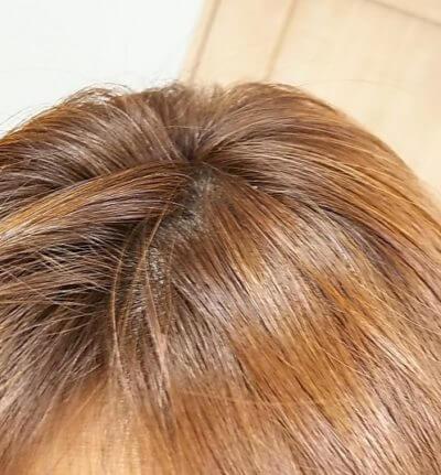 クレムドアン 白髪